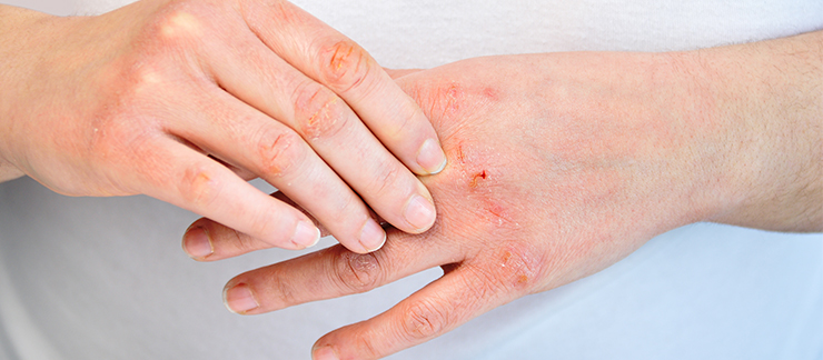 Shingles Complications in the Elderly And How Medicare Can Help